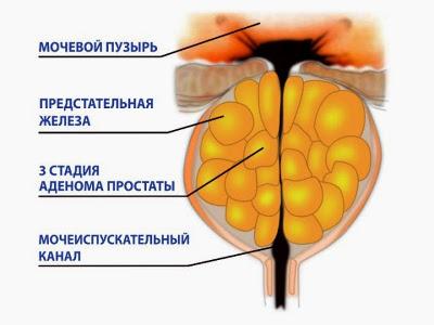 Симптомы больной предстательной железы