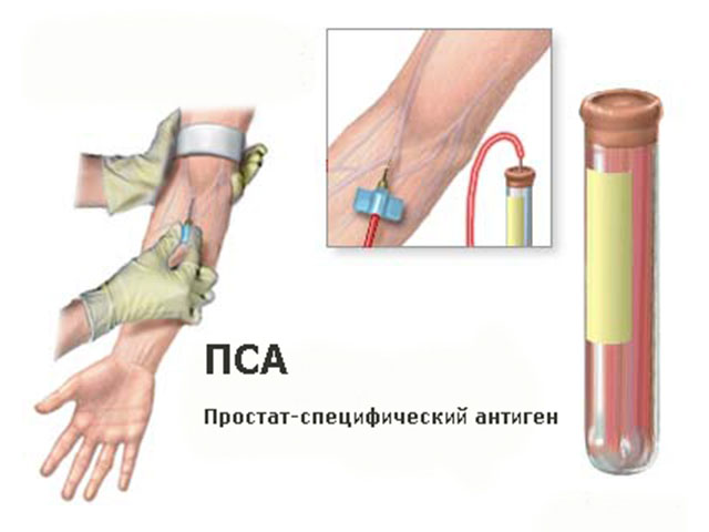 Лечение простатита и цистита народными средствами
