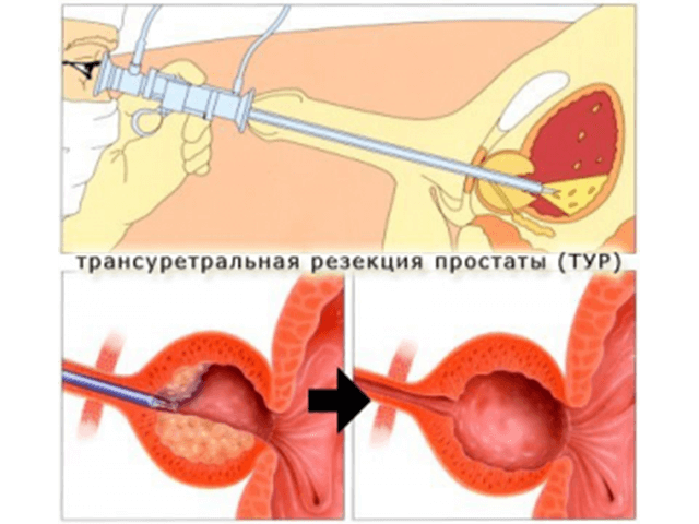 Асд фракция 2 лечение рака простаты
