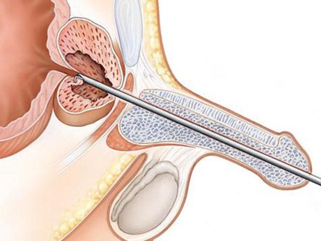 Лекарства для лечения уретра простатит