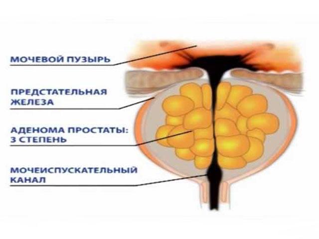 Мазь от рака предстательной железы