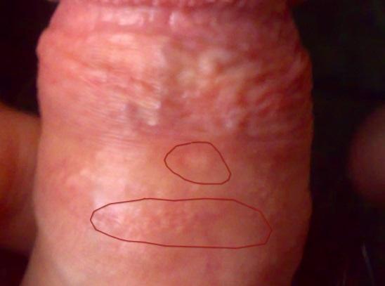 Народное средство от грибка ногтей с уксусом