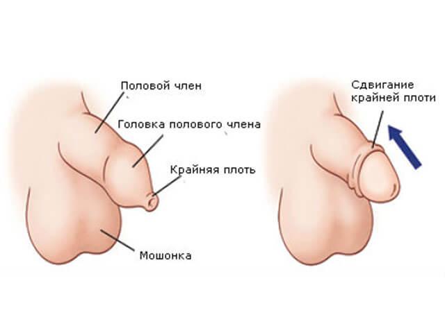 Цистит у женщин, симптомы, лечение, причины цистита ...