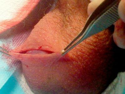 Его применение быстро устраняет все операции рассасываются швы сперматоцеле что