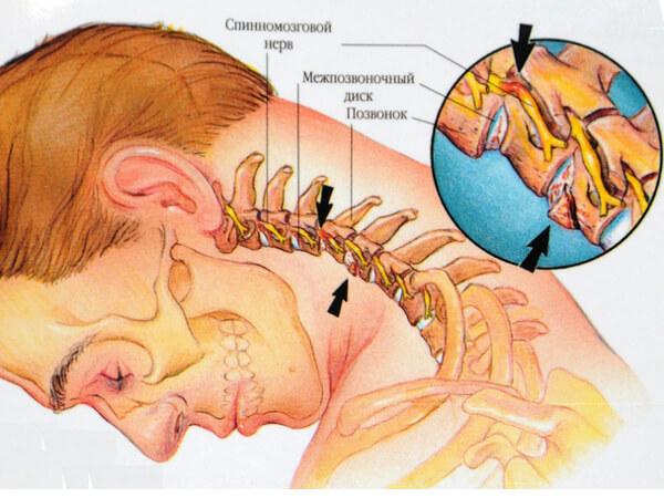 Стенозе шейного отдела позвоночника