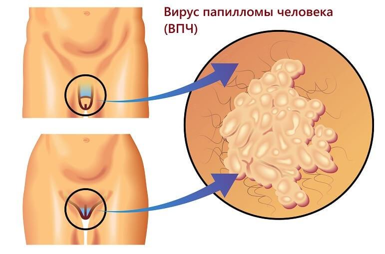Лечение подошвенных бородавок лекарствами