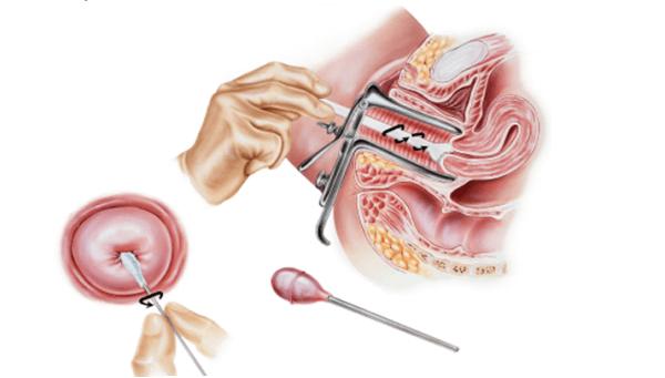 Как берут мазок пцр у беременных 94