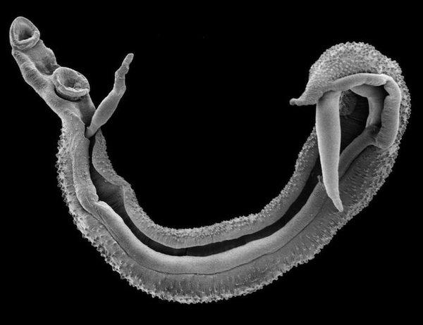 паразиты в печени человека симптомы