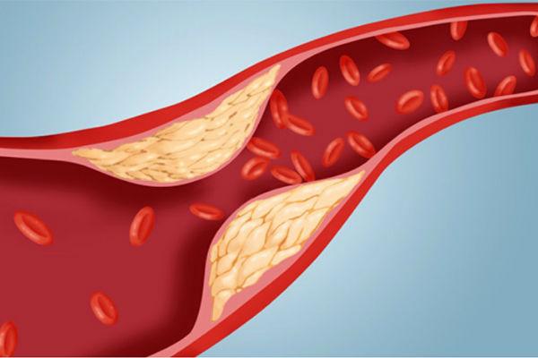 Диета при по повышенном холестерине