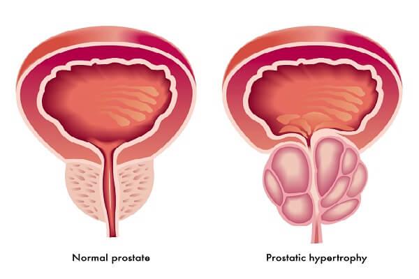 Размеры предстательной железы в 75 лет
