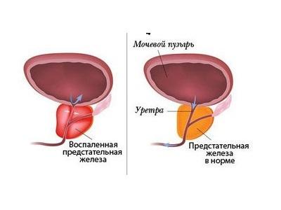 Острый хронический простатит предстательной железы