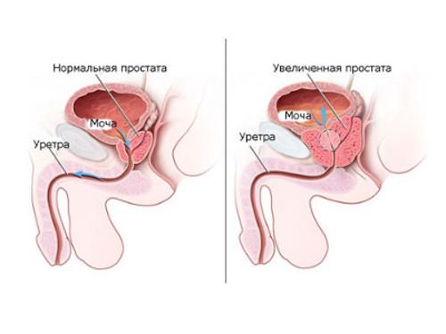 Опухоль предстательной железы у мужчин народными средствами