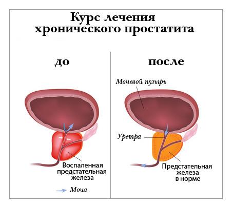 Медикаментозная профилактика простатита