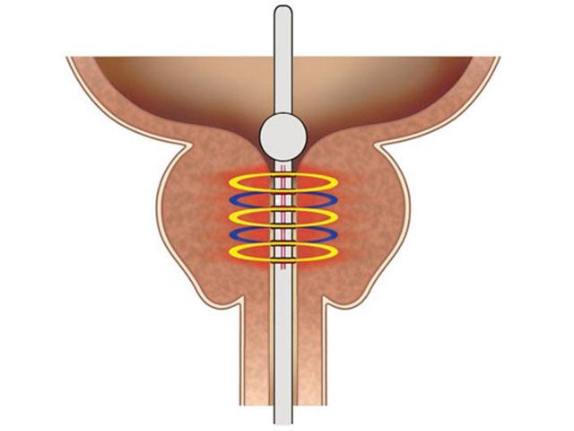 Медицина простата у мужчин и ее лечение ликопрофит