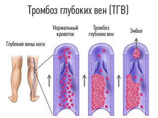 Реабилитация после радикальной простатэктомии
