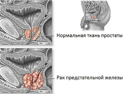 Как выглядит рак предстательной железы, рак простаты