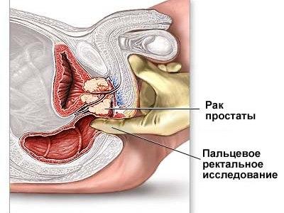 Самые сильные лекарства от простатита
