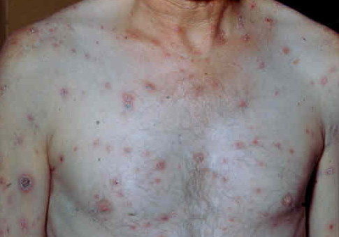 Сифилис: описание заболевания, причины возникновения, симптомы и лечение - Медицина, симптомы, лечение, признаки, лекарства
