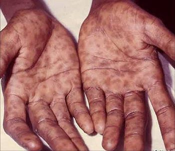 Сифилис влагалища видео фото 216-598