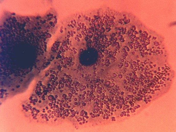 Зачатие и микоплазм