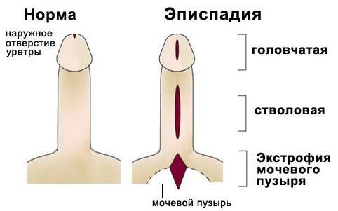 какой размер полового члена Нижнекамск