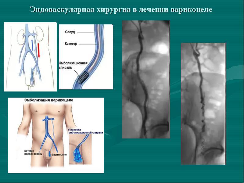 Лечение варикоцеле яичка