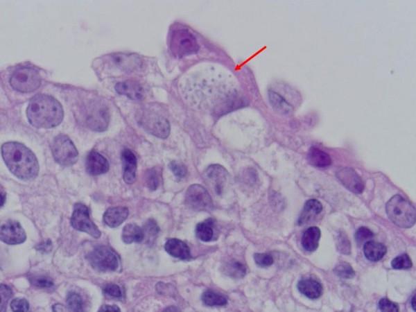 как проявляется наличие паразитов в организме