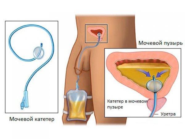 Мочевой катетер при аденоме простаты