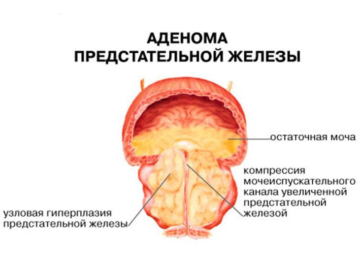 Нужна профилактика чтобы избежать аденомы простаты