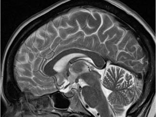 МРТ головного мозга – один из методов диагностики повышенного пролактина