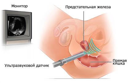 Определение размеров предстательной железы в норме по УЗИ