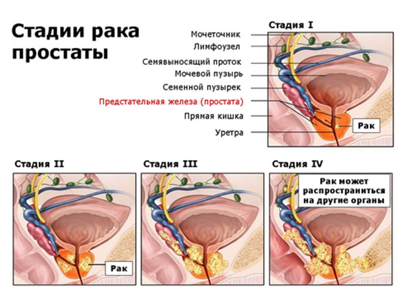 Этапы развития болезни рак простаты