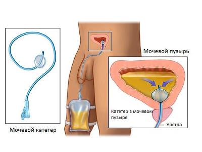 Аденома простаты: определение заболевания аденома предстательной ...