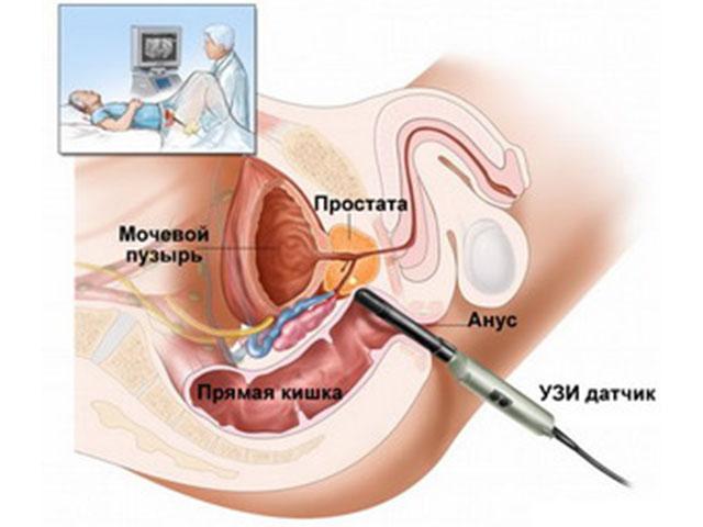 простатиты у мужчин биопсия