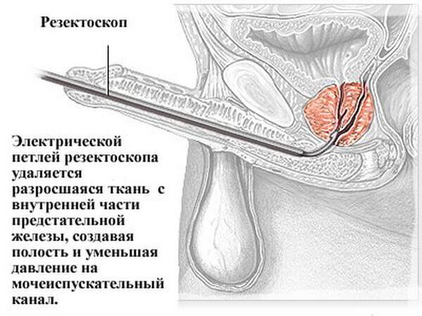 Операция аденомы способом тур