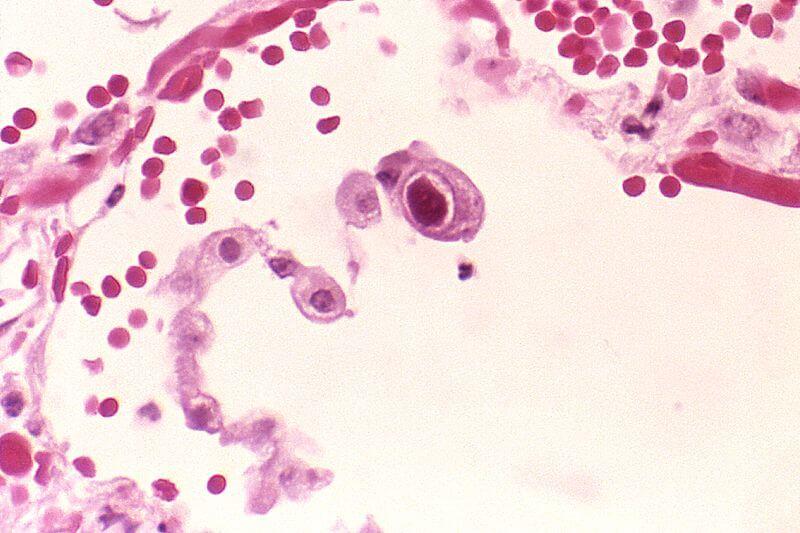 Цитомегаловирус lgg положительный