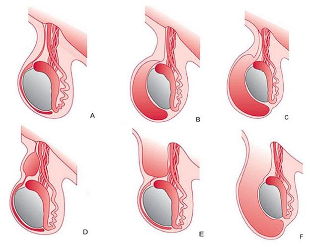 Водянка яичек у новорожденных: признаки и причины, последствия и лечение