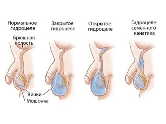 Влияеи ли водянка яичка на сексуальную жизнь