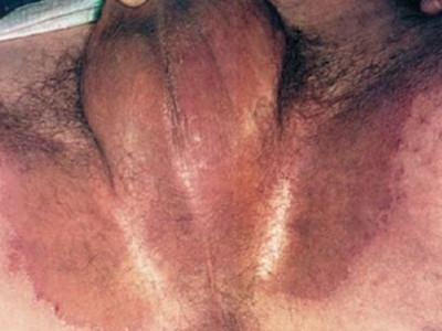 зуд у мужчин в паху фото