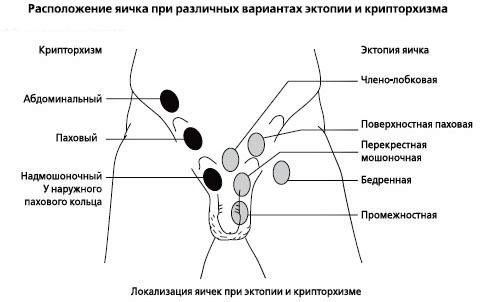 Различные комплекция крипторхизма