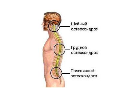 Массаж лечение остеохондроза спины видео