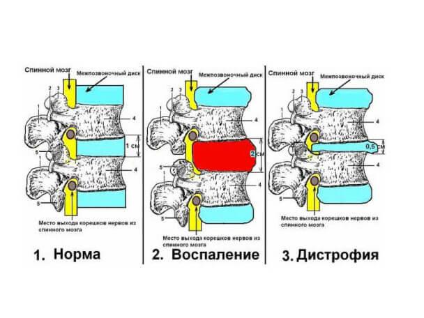 Можно ли париться при остеохондрозе шейного отдела