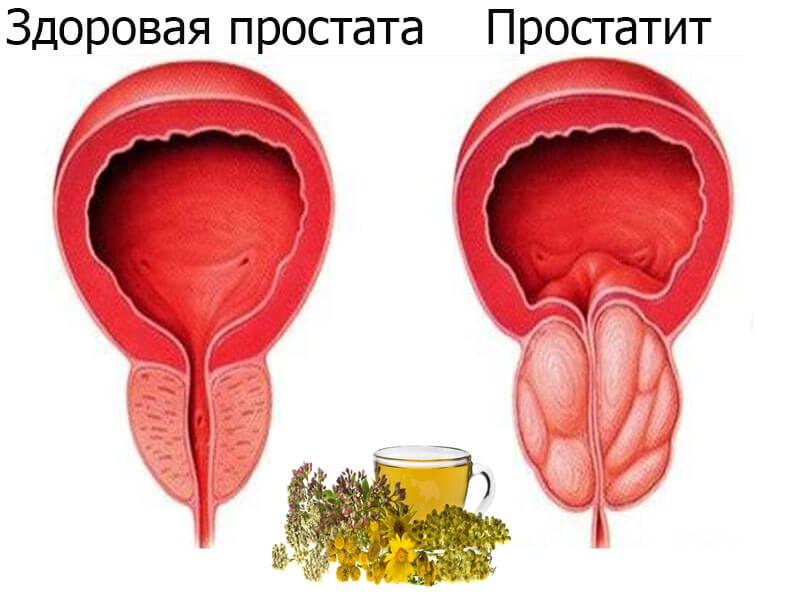 что пил о простатита