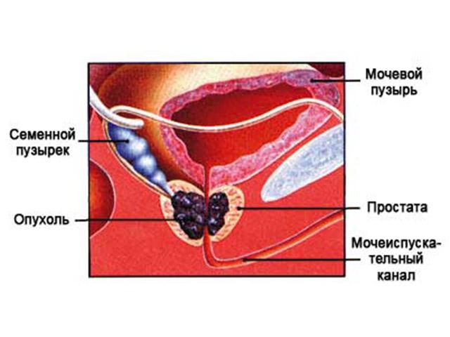 растительные препараты при аденоме предстательной железы