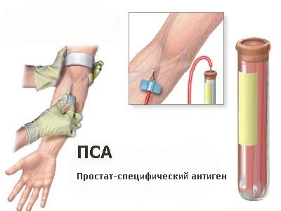 ПСА при раке предстательной железы