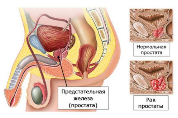 Первые признаки рака простаты у мужчин и анализы для ...