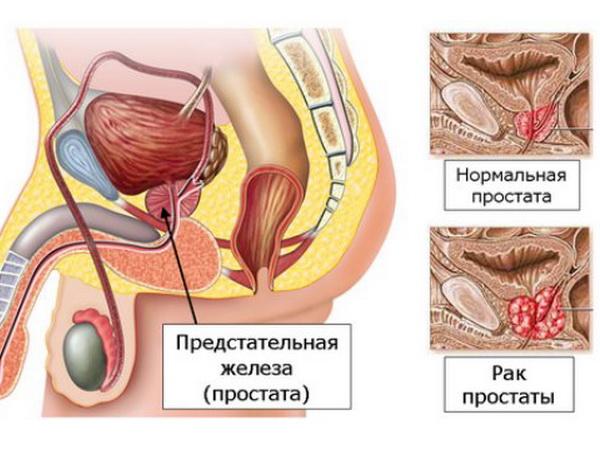 рак предстательной железы прогноз выживаемости