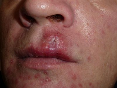 фото сифилис на губах