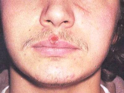 фото сифилиса на губах.