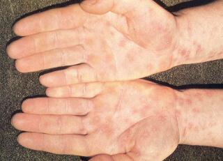 Симптом сифилиса